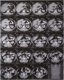 Abdomen de CT Images libres de droits