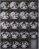 Abdomen del CT Imágenes de archivo libres de regalías