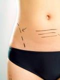 Abdomen marqué pour la chirurgie plastique Images libres de droits