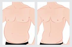 Abdomen masculin avant et après le traitement Images stock
