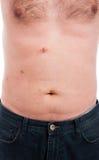 Abdomen masculino con las puntadas después del retiro de la vesícula biliar Fotografía de archivo libre de regalías
