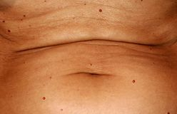 The abdomen is in red angiomas. Flabby wrinkled abdomen. The navel is stretched. royalty free stock photography