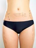 Abdomen, Taille, Schenkel markiert für Schönheitsoperation stockbilder