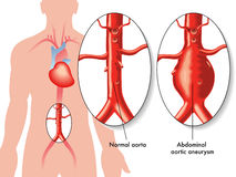 Abdominal aortic aneurysm. Medical illustration of the effects of Abdominal aortic aneurysm stock illustration