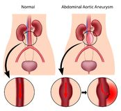 Abdominal aortic aneurysm. Disease of the circulatory system, eps8 royalty free illustration