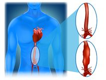 Abdominal aortic aneurysm. Location and appearance. Vector stock illustration