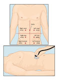 Abdominal auscultation. Sites of abdominal vascular sounds when performing abdominal auscultation with a stethoscope Royalty Free Stock Image