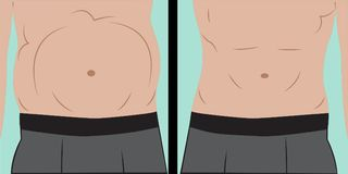 Abdominal bloating Royalty Free Stock Image