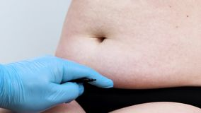 Abdominoplasty και torsoplasty: κοιλιακές liposuction και αφαίρεση της ποδιάς Ο ασθενής στην υποδοχή στο πλαστικό surgeo απόθεμα βίντεο