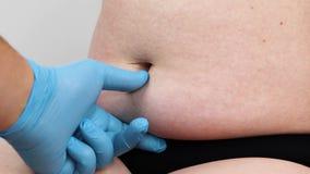 Abdominoplasty e torsoplasty: lipoaspiração e remoção abdominais do avental O paciente na recepção no surgeo plástico video estoque