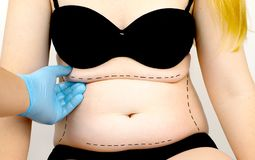 Abdominoplasty and torsoplasty: abdominal liposuction and removal of the apron. The patient at the reception at the plastic stock images