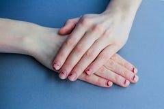 Abgebrochene, geschichtete Nägel Nägel nach Gel Polnischem unordentliche Hände auf einem blauen Hintergrund lizenzfreie stockfotografie