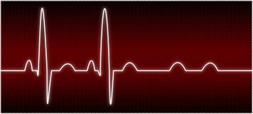 Abnormaal electrocardiogram (Blok AV) Stock Fotografie