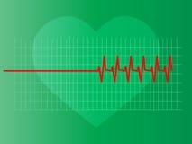Abnormaal hart Stock Foto