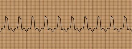 Abnormal cardiogram ventricular tachycardia. Vector illustration Stock Photos