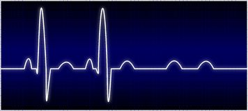 Abnormal EKG. Illustration of an abnormal ekg heart beat Royalty Free Stock Images