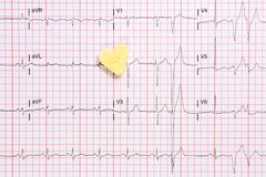 An abnormal electrocardiogram waves with a little heart Stock Photos