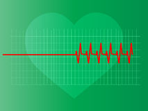 Abnormal heart. A heart's electrocardiograph showing an abnormal curve with defects Royalty Free Illustration