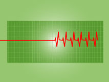 Abnormal heart's graph. A heart's electrocardiograph showing an abnormal curve with defects stock illustration