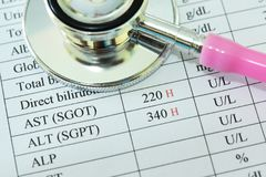 Abnormal high liver enzyme test result stock photography