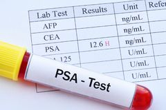 Abnormal high PSA test result. With blood sample royalty free stock image