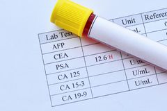 Abnormal high PSA test result. With blood sample tube stock photos