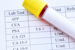 Abnormal high PSA test result. With blood sample tube royalty free stock photos