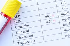 Abnormal high renal function test results. With blood sample tube Royalty Free Stock Image