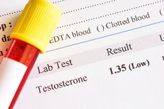 Abnormal low testosterone hormone test result. With blood sample tube royalty free stock images