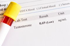 Abnormal low testosterone hormone test result. With blood sample tube royalty free stock photo