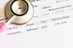 Abnormal low testosterone hormone test result. With stethoscope stock images