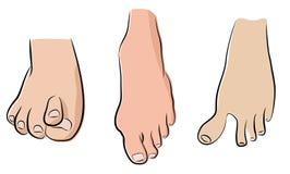 Abnormale voeten royalty-vrije illustratie