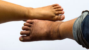 Above the feet of obese people. Stock Photography
