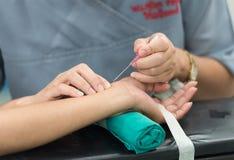 Abra la arteria radial para la línea controlador arterial fotos de archivo libres de regalías