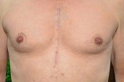 Abra la cirugía de corazón Fotos de archivo libres de regalías