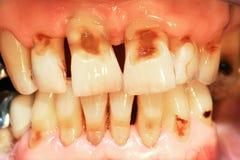 Abrasión de los dientes Fotos de archivo