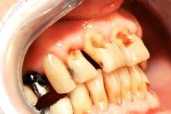 Abrasión de los dientes fotografía de archivo libre de regalías
