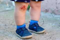 Abrasión sangrienta en la rodilla del ` s del niño imagen de archivo libre de regalías
