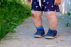 Abrasión sangrienta en la rodilla del ` s del niño imagen de archivo