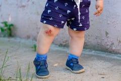 Abrasión sangrienta en la rodilla del ` s del niño imágenes de archivo libres de regalías