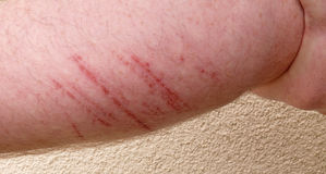 Abrasion. On the backside of a arrm Stock Photography