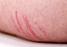 Abrasion On The Backside Of A Arrm Stock Photography