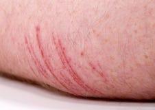 skin abrasion stock images download 509 photos