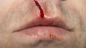 Abrasion in the upper part of the lip. Abrasion with blood in the upper part of the lips Royalty Free Stock Photos