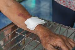 Abrasion wound arm. Injury bleeding Royalty Free Stock Photography
