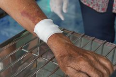 Abrasion wound arm. Injury bleeding Royalty Free Stock Photo