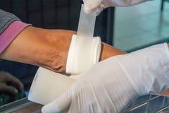 Abrasion wound arm injury. Bleeding Stock Images