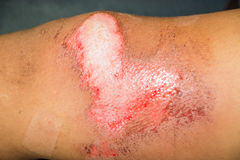 Abrasion wound Royalty Free Stock Image