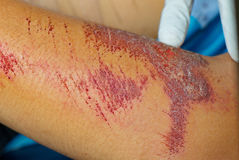 Abrasion wound. Leg has abrasion wound accident Royalty Free Stock Photography