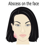 Abscess on the face Royalty Free Stock Images